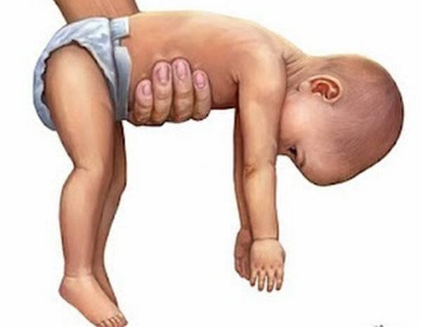 Гипотония у детей