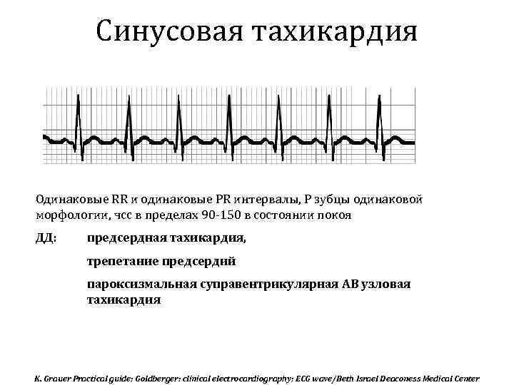 Нарушения сердечного ритма | кардиологический центр в санкт-петербурге