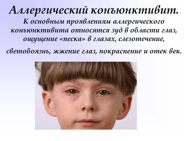 Лечение острого конъюнктивита у детей - энциклопедия ochkov.net