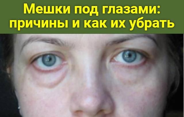 Гиалуроновая кислота против мешков под глазами