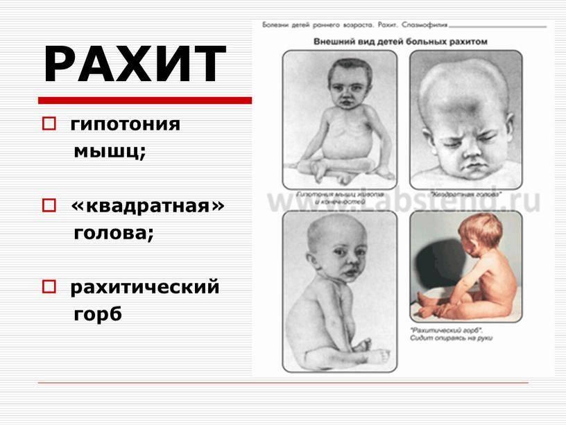 Рахит у детей: причины, симптомы, диагностика и лечение   аллегро