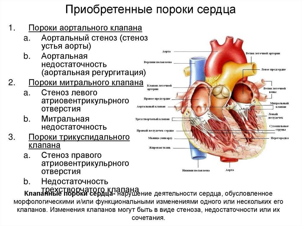 Пороки развития новорожденных: классификация, причины возникновения