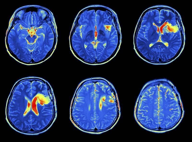 Вопросы и ответы специалистов - кт головного мозга