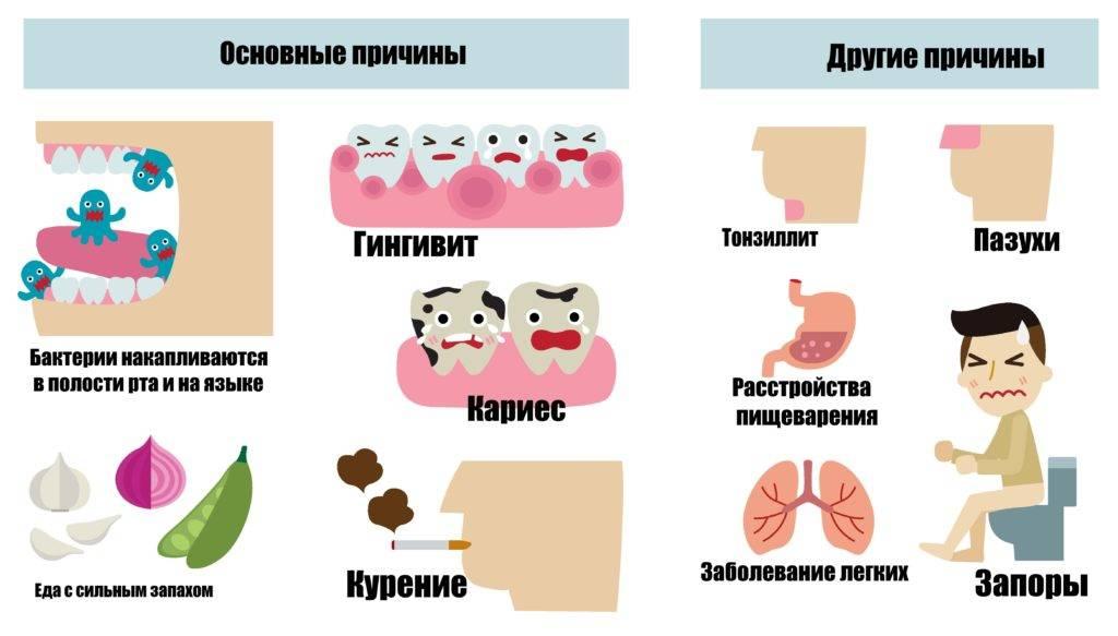 Неприятный запах изо рта (галитоз) - причины возникновения, диагностика и лечение