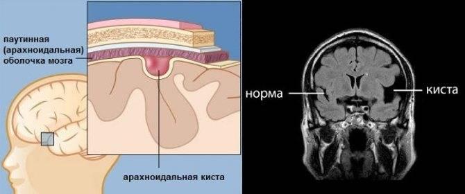 Мрт головного мозга - современная и точная диагностика