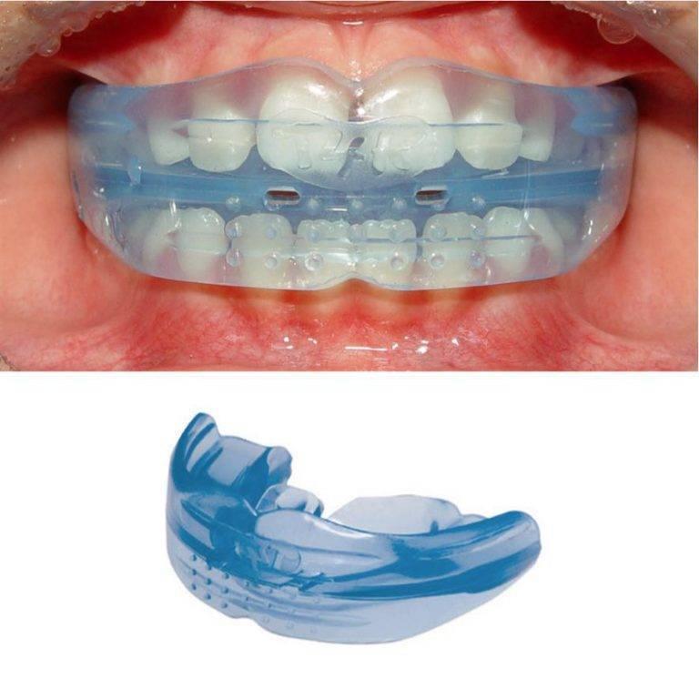 Скобы для зубов: как ставят, отличия от брекетов, сколько носят, цена. скобы на зубы детям
