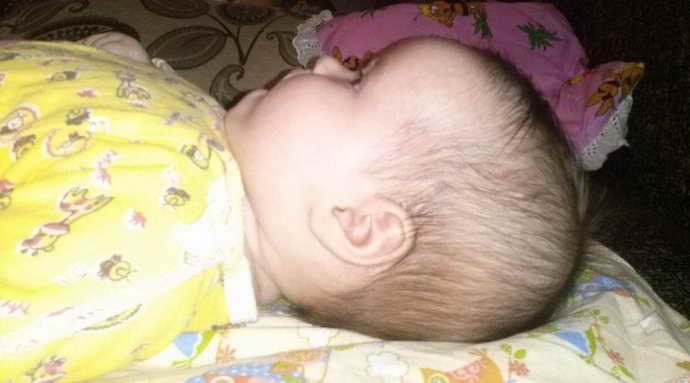 Деформация головы у новорожденного - что нужно знать родителям - beautyvertebro.com