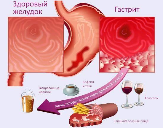 Гастрит желудка: формы, симптомы и методы лечения
