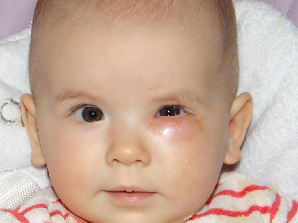 Розацеа: болезнь красного носа