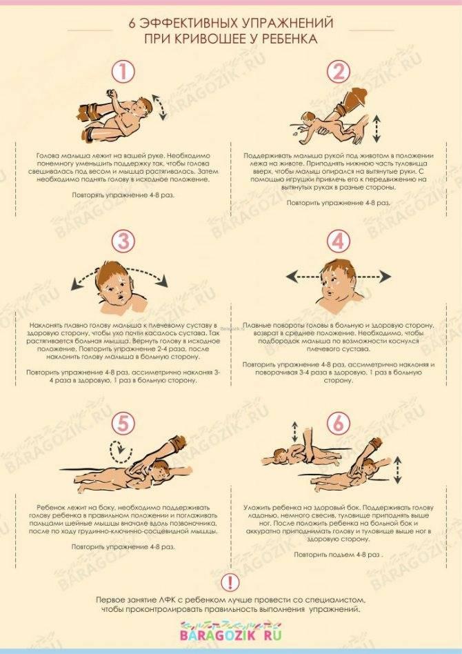 Массаж в лечении кривошеи у детей — добрый доктор