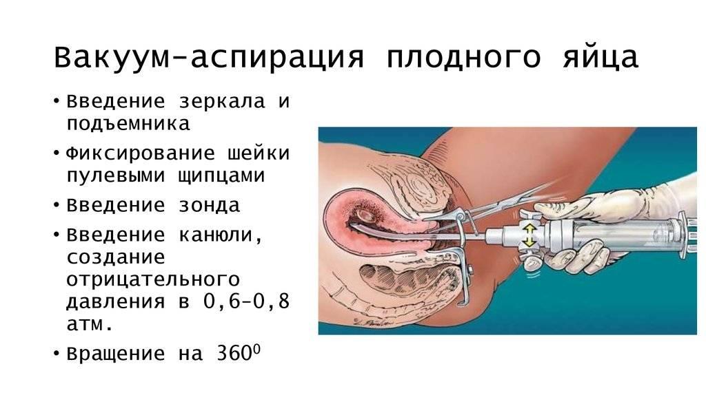 Отзывы о медикаментозном прерывании беременности