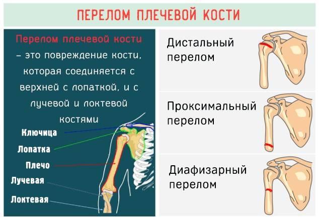 Лечение переломов