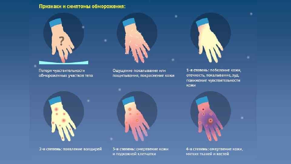 Обморожение – признаки, первая помощь и профилактика