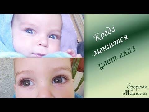 Разный цвет глаз у человека: как называется, причины