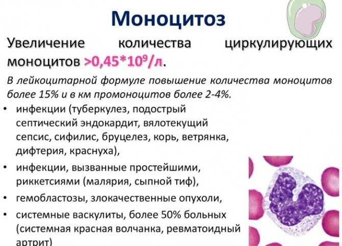 Лечение лейкоцитоза при беременности в москве, симптомы, причины, способы лечения — клиника «доктор рядом»