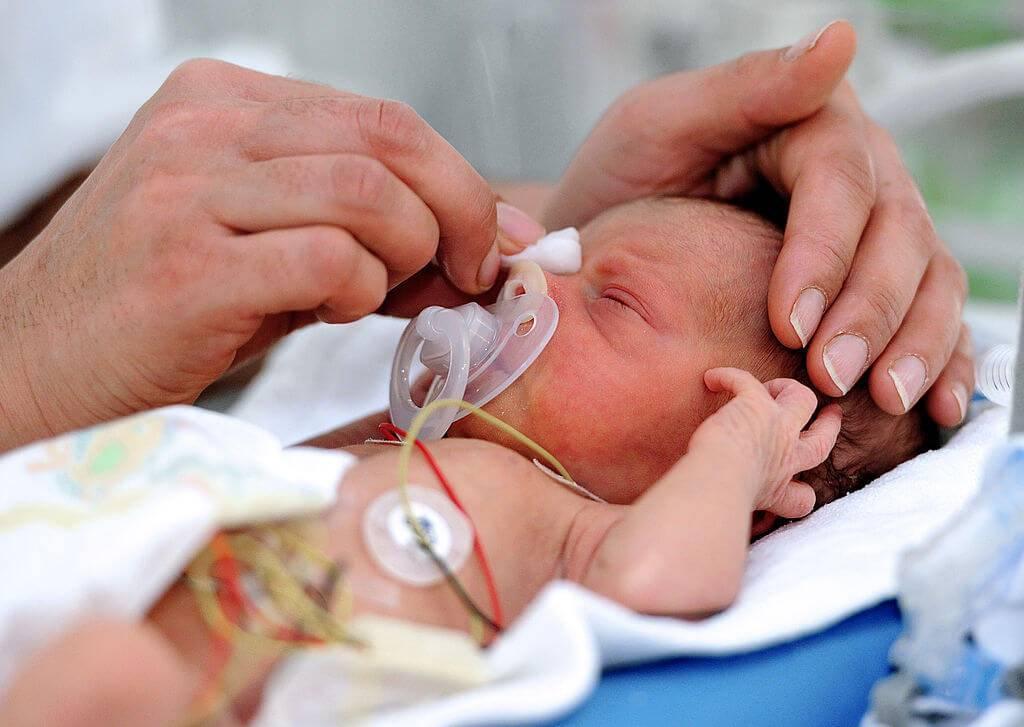Смерть ребенка в родах. почему умирают дети?