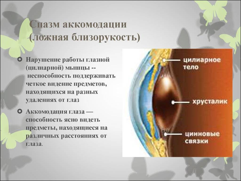 Спазм аккомодации глаз: что это, как снять, лечение, симптомы, капли «ochkov.net»