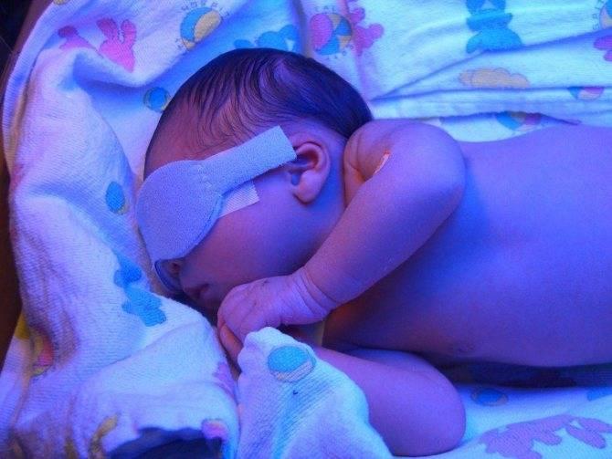Основные направления стационарного и домашнего лечения желтухи у новорожденных