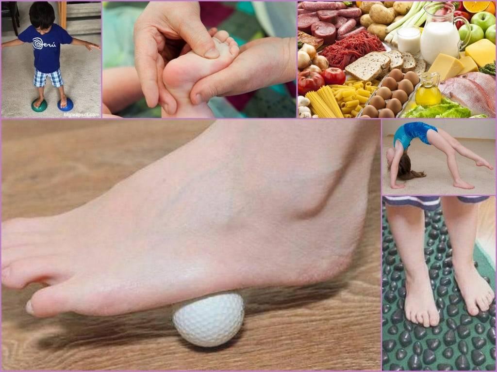 Плоскостопие у детей: причины, профилактика и методы лечения в домашних условиях