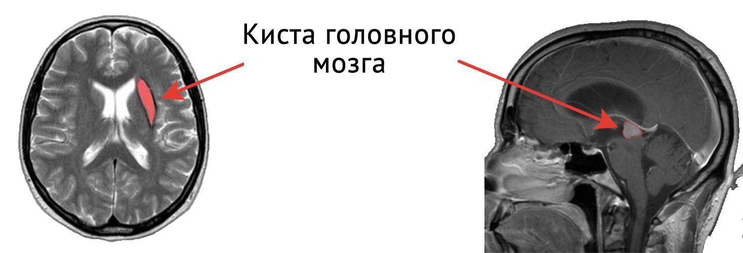 Киста головного мозга. церебральная киста. арахноидальная киста - медицинский центр «эхинацея»