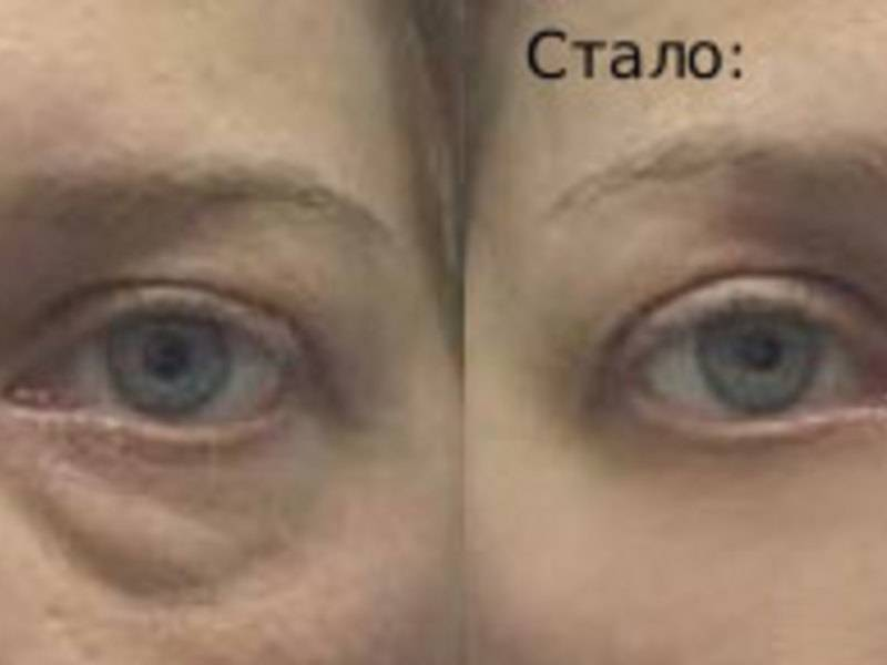 Как убрать морщины под глазами: эффективные методы