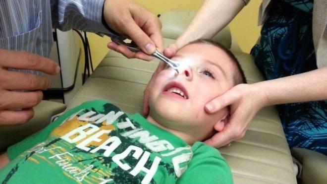 Как извлечь из носа ребенка маленький предмет? я теперь знаю... - страна мам