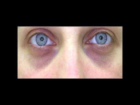 Почему появляются синяки под глазами у грудничка: 10 самых распространённых причин