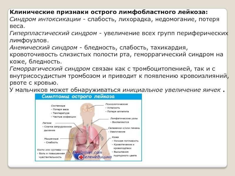 Всё, что нужно знать об остром лимфобластном лейкозе