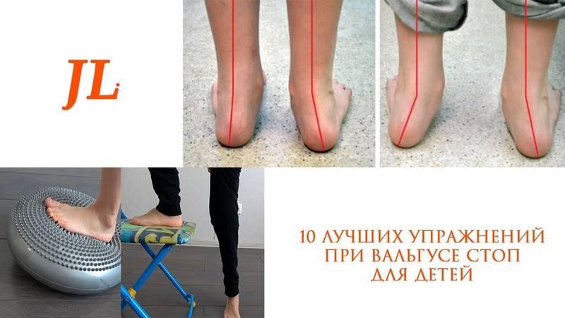 Массаж при вальгусной и плосковальгусной деформации стопы у детей: видео