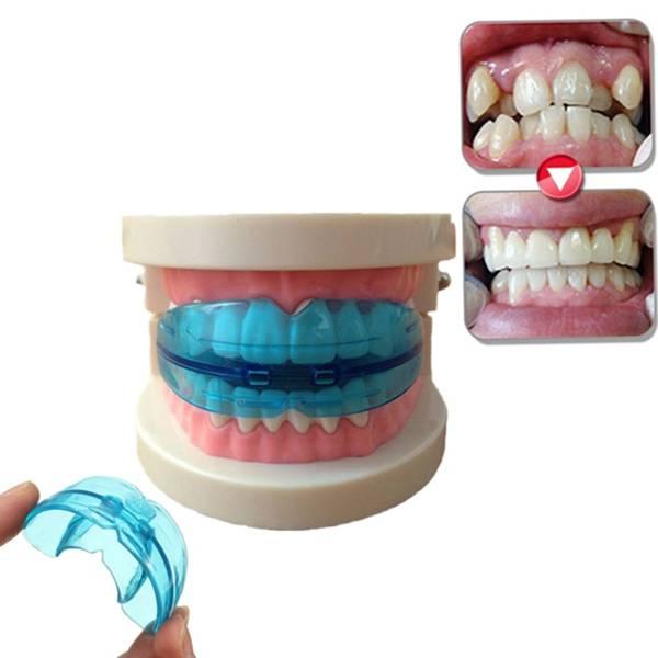 Трейнеры для зубов: плюсы и минусы, виды, как носить и ухаживать, фото до и после, цены, отзывы