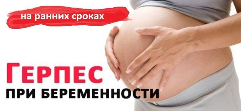 Герпес у беременных