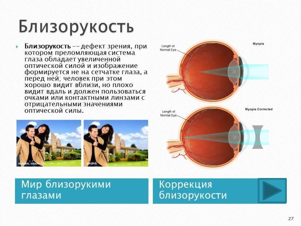Лечение слабой степени близорукости - энциклопедия ochkov.net