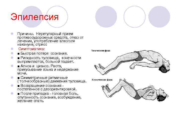 Эпилепсия у детей: признаки, источники и лечение заболевания