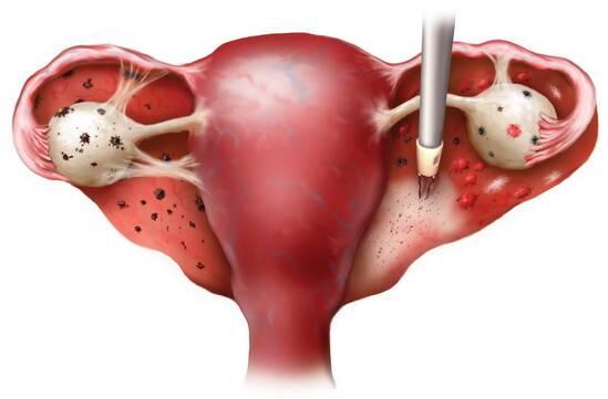 Аденомиоз матки | симптомы и лечение аденомиоза матки | компетентно о здоровье на ilive