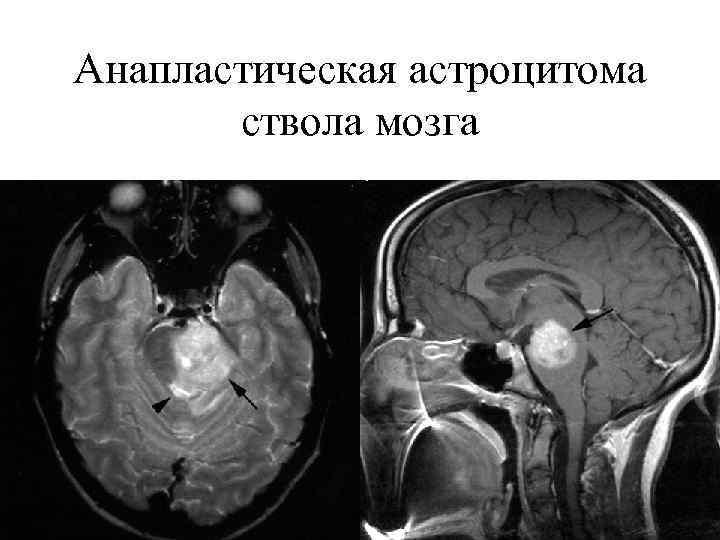 Опухоли головного мозга у детей: важность онконастороженности и особенности диагностики с позиции детского невролога | nasdr