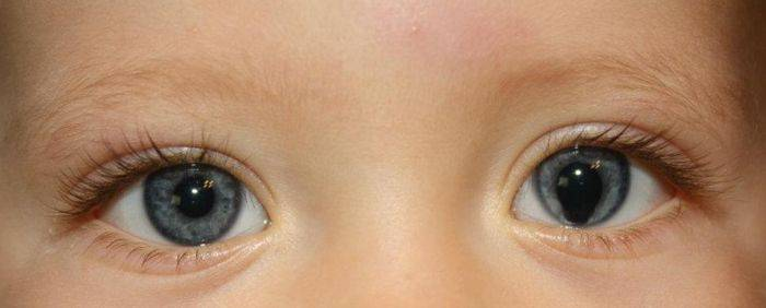 Один зрачок больше другого причины у младенца. что значит разный размер зрачков у малышей