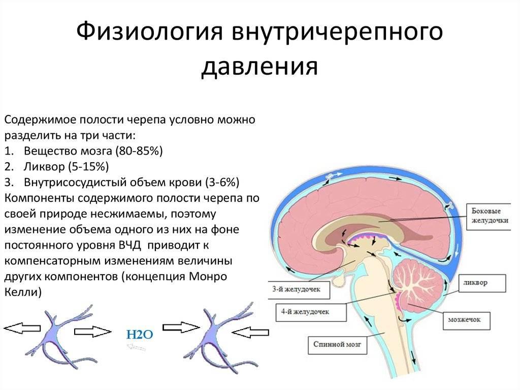 Внутричерепное давление. внутричерепная гипертензия. гидроцефалия
