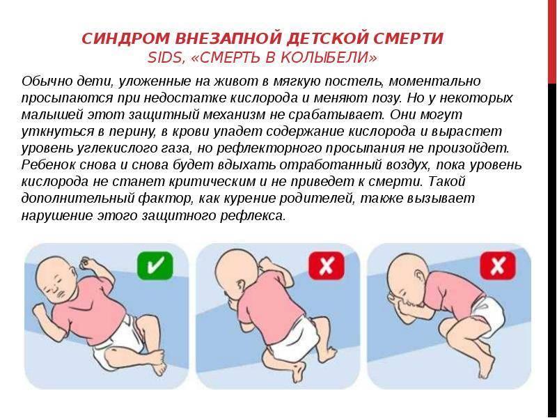 Синдром внезапной детской смерти — википедия