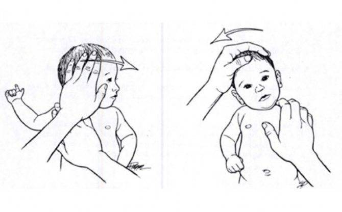Установочная кривошея (левосторонняя, правосторонняя) у новорожденных