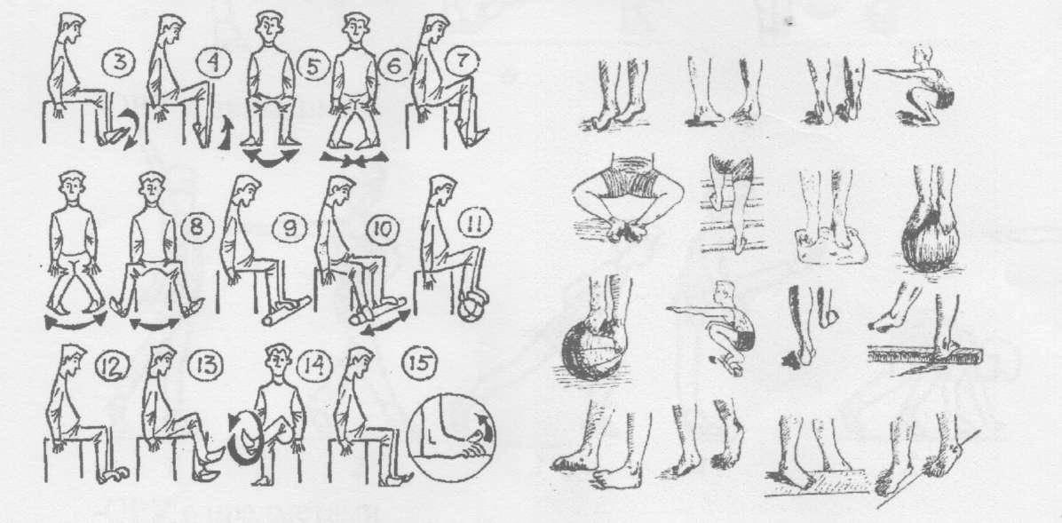 Особенности ортопедических стелек для детей при лечении вальгусной деформации стоп