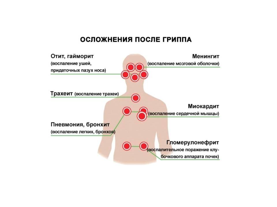 Осложнения гриппа: что будет, если не лечить грипп и орви