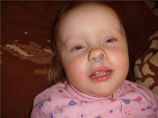 Синие губы - это признак какой болезни?