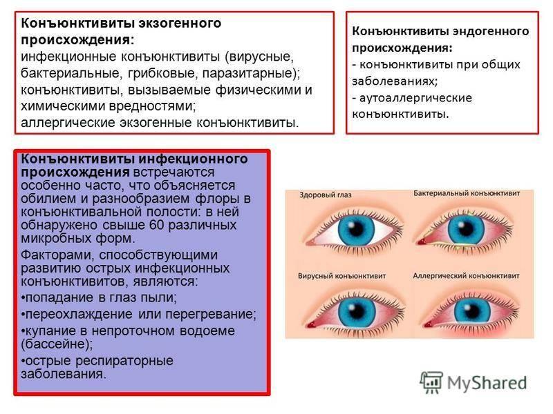 Заболевания глаз. виды и способы лечения
