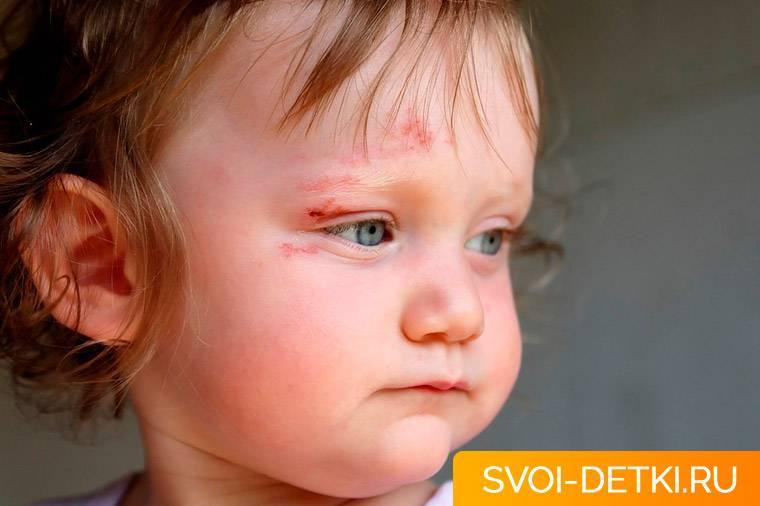 Ребенок упал и ударился головой: что делать?   | материнство - беременность, роды, питание, воспитание