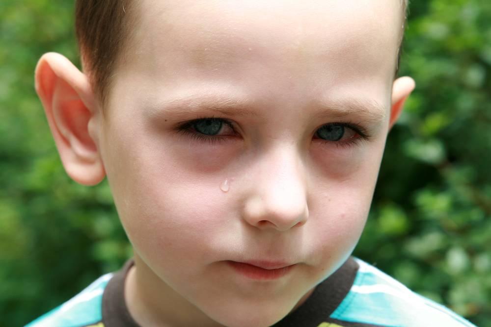 Причины синяков под глазами и способы устранения