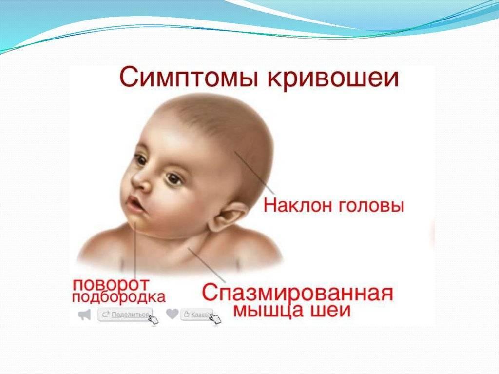 Кривошея - причины, признаки, методы лечения. кривошея у новорожденных :: polismed.com
