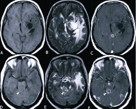 Субдуральные гематомы головного мозга — симптомы и способы лечения гематом головного мозга в клинике целт