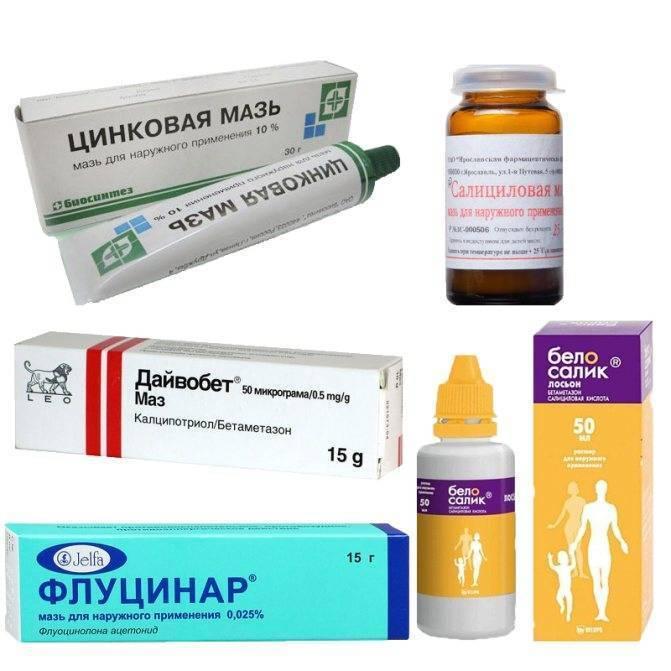 Разноцветный лишай: симптомы и лечение