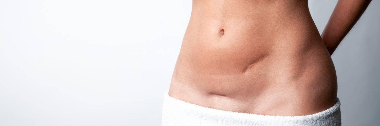 «ниши» рубца на матке после кесарева сечения: диагностика, лечение и исходы