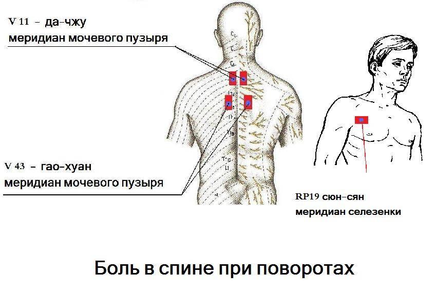 Грамотное поведение когда болит затылок и шея: причины, симптомы и лечение заболевания.